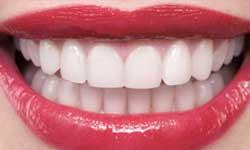 esthétique dentaire paris