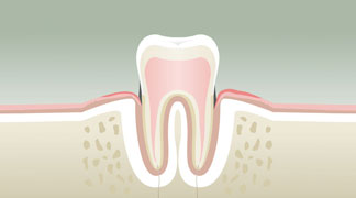 parodontologie2